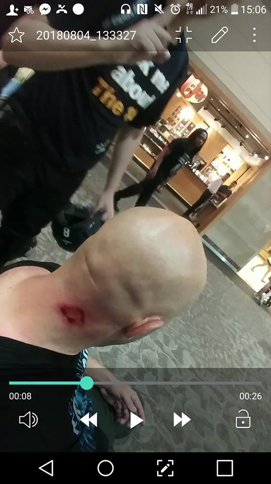 Injury sustained by Samson Racioppi from bike lock by Antifa attack at Providence Rally